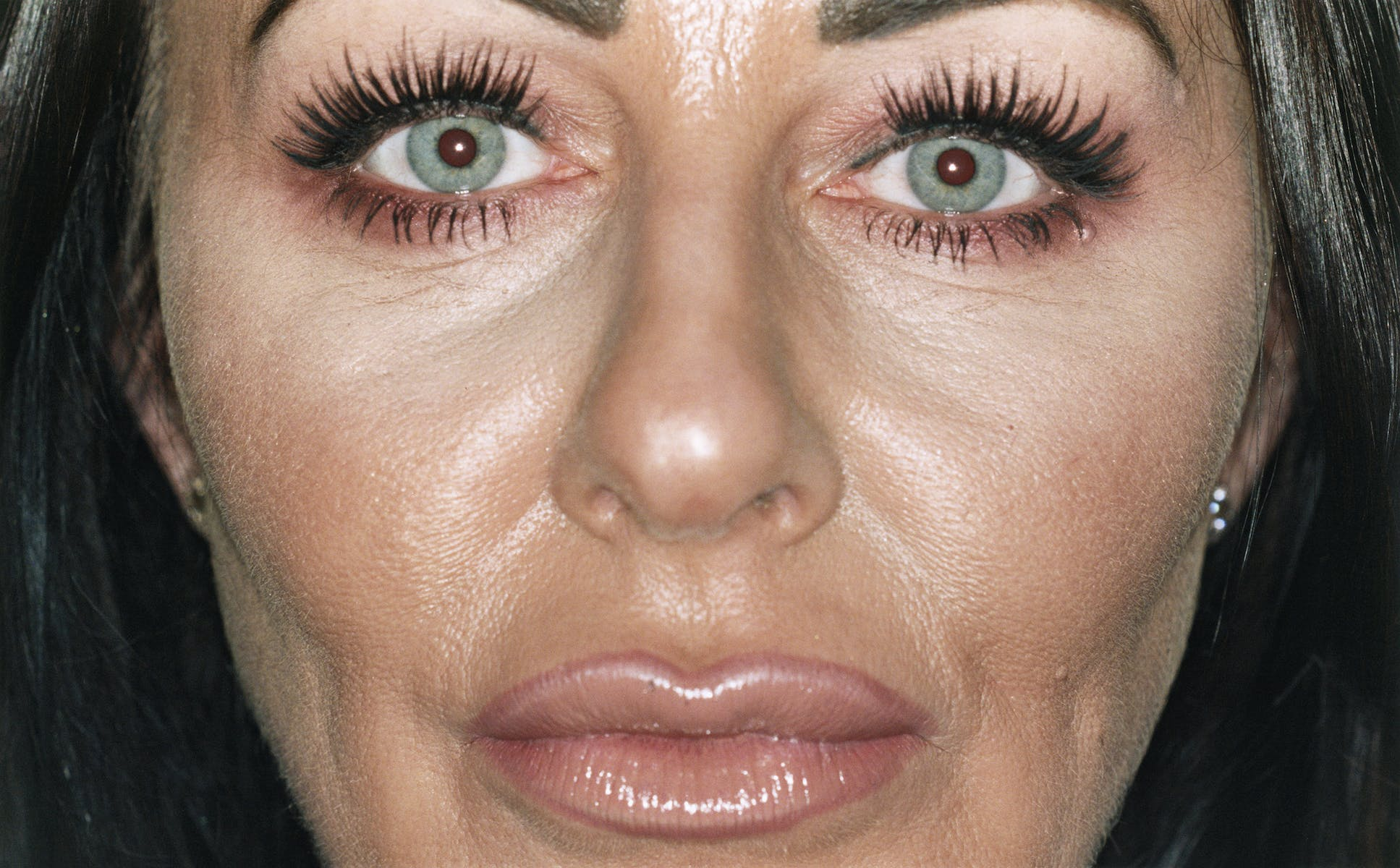 This is what 10+ years of Botox looks like - The Face